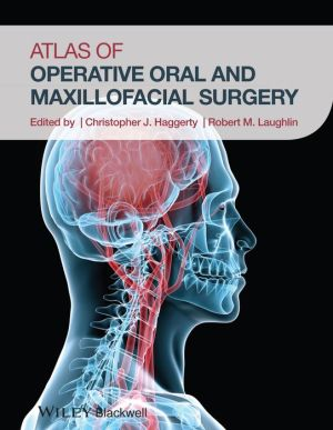 Atlas of Operative Oral and Maxillofacial Surgery - ABC Books