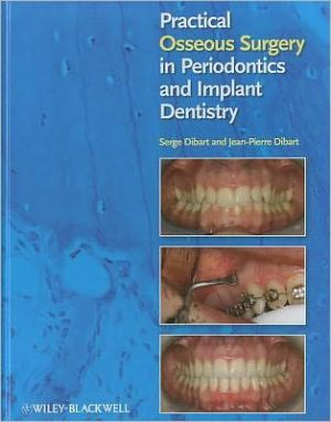 Practical Osseous Surgery in Periodontics and Implant Dentistry - ABC Books