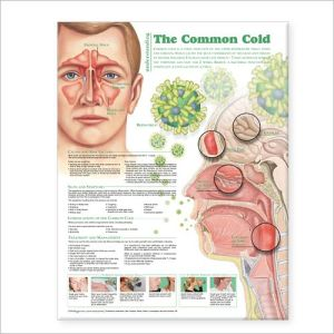 Understanding the Common Cold Chart 2E