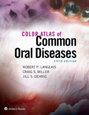 Color Atlas of Common Oral Diseases, 5E - ABC Books