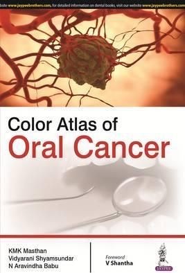 Color Atlas of Oral Cancer - ABC Books
