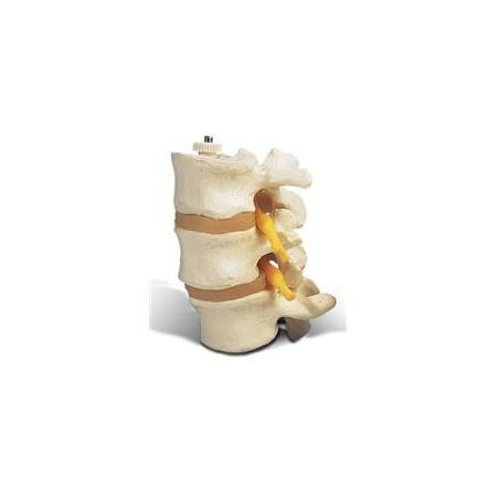 3 Lumbar Vertebrae, flexibly mounted - ABC Books