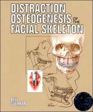 Distraction Osteogenesis of the Facial Skeleton - ABC Books