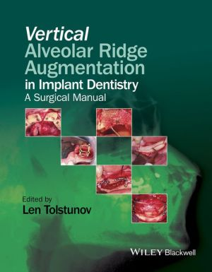 Vertical Alveolar Ridge Augmentation in Implant Dentistry - A Surgical Manual - ABC Books