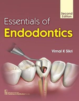 Essentials of Endodontics, 2e (PB)