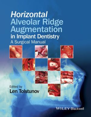 Horizontal Alveolar Ridge Augmentation in Implant Dentistry: A Surgical Manual - ABC Books