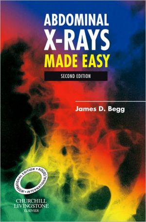 Abdominal X-Rays Made Easy, IE, 2nd Edition - ABC Books