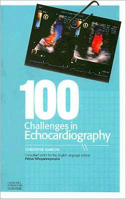 100 Challenges in Echocardiography ** - ABC Books