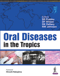 Oral Diseases in the Tropics - ABC Books