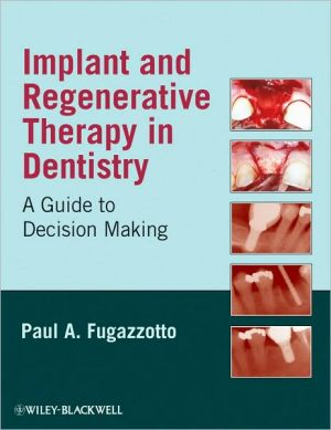 Implant and Regenerative Therapy in Dentistry: A Guide to Decision Making - ABC Books