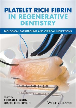 Platelet Rich Fibrin in Regenerative Dentistry: Biological Background and Clinical Indications - ABC Books