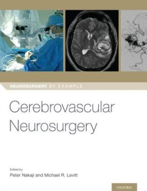 Cerebrovascular Neurosurgery