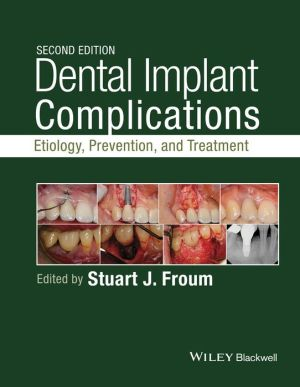 Dental Implant Complications: Etiology, Prevention, and Treatment, 2nd Edition - ABC Books