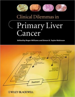 Clinical Dilemmas in Liver Cancer - ABC Books