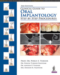 Clinical Guide to Oral Implantology: Step by Step Procedures 3/e - ABC Books