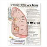 Understanding Lung Cancer Chart
