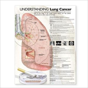 Understanding Lung Cancer Chart - ABC Books