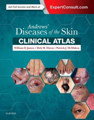 Andrews' Diseases of the Skin Clinical Atlas - ABC Books