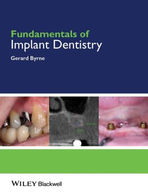 Fundamentals of Implant Dentistry - ABC Books