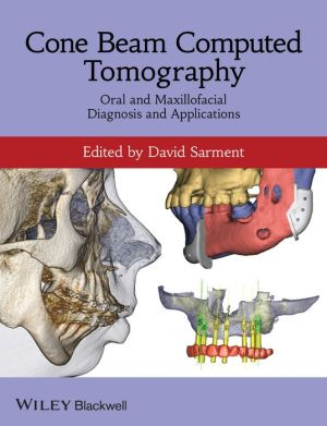 Cone Beam Computed Tomography - Oral and Maxillofacial Diagnosis and Applications - ABC Books