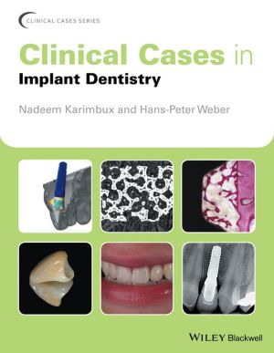Clinical Cases in Implant Dentistry - ABC Books