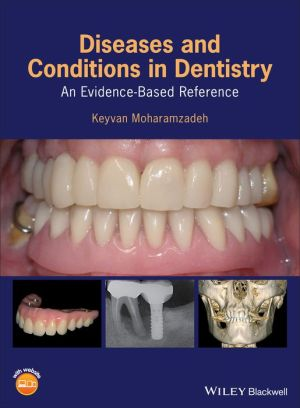 Diseases and Conditions in Dentistry: An Evidence-Based Reference - ABC Books