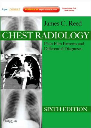 Chest Radiology, 6th Edition **