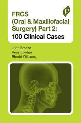FRCS (Oral & Maxillofacial Surgery) Part 2 : 100 Clinical Cases