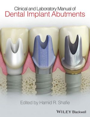 Clinical and Laboratory Manual of Dental Implant Abutments - ABC Books