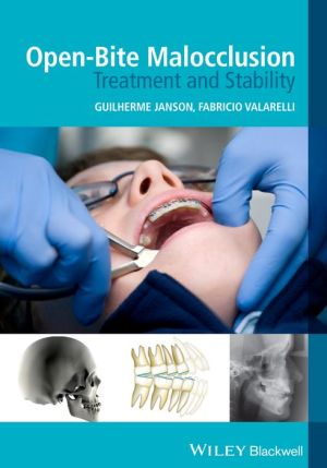 Open-Bite Malocclusion - Treatment and Stability - ABC Books