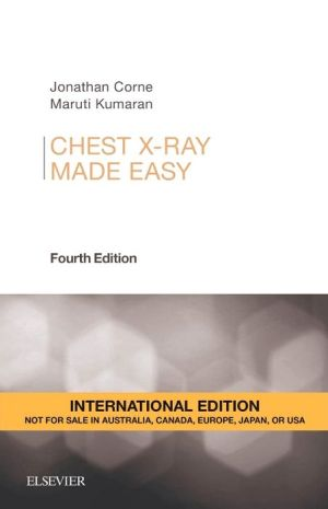 Chest X-Ray Made Easy IE, 4th Edition