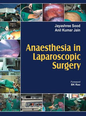 Anaesthesia in Laparoscopic Surgery - ABC Books