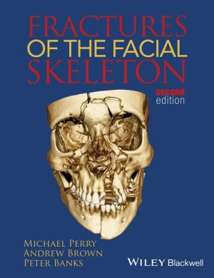 Fractures of the Facial Skeleton 2e - ABC Books