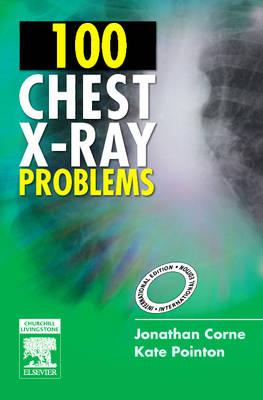 100 Chest X-Ray Problems IE ** - ABC Books