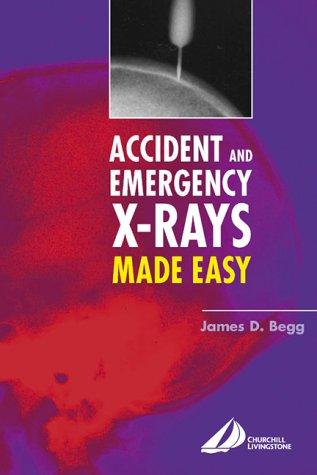Accident & Emergency X-Rays Made Easy - ABC Books