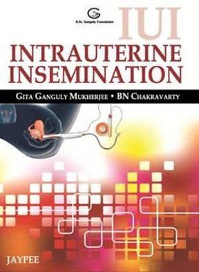 IUI Intrauterine Insemination - ABC Books