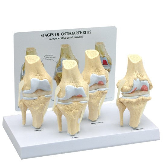 4-Stage Osteoarthritic Knee - ABC Books