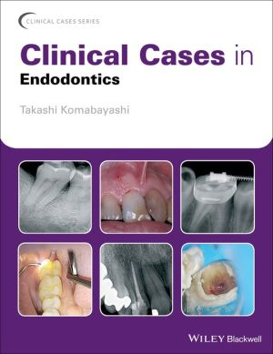 Clinical Cases in Endodontics - ABC Books