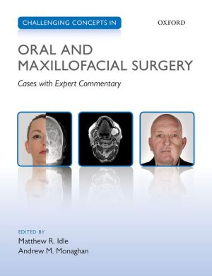 Challenging Concepts in Oral and Maxillofacial Surgery: Cases with Expert Commentary - ABC Books