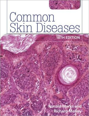 Common Skin Diseases, 18e - ABC Books