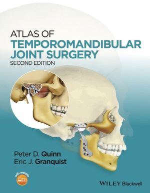 Atlas of Temporomandibular Joint Surgery, 2nd Edition