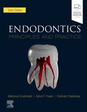 Endodontics: Principles and Practice, 6e
