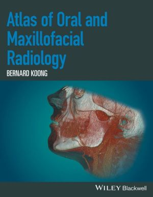 Atlas of Oral and Maxillofacial Radiology - ABC Books