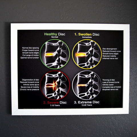 Gonstead Disc Poster