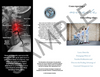 Subluxation Brochure