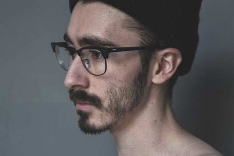 Guy with patchy beard growth