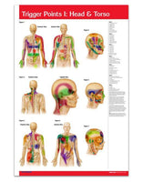 Trigger Point acupuncture poster