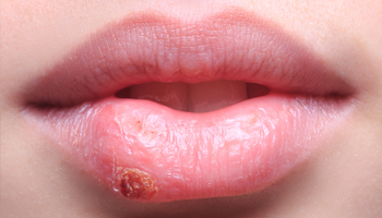 Cold sore crusting stage