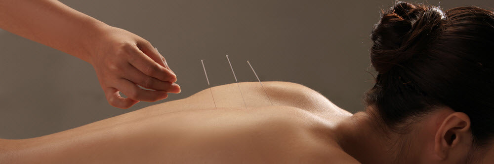 Great Deals On Acupuncturist Merchandise With Free Shipping!