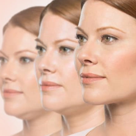 KYBELLA Difference